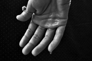 Sudoración excesiva: un problema que afecta nuestra vida social