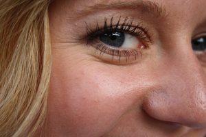 arrugas debajo de los ojos